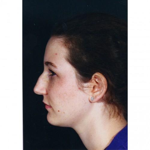 Rhinoplasty 202 Before Photo