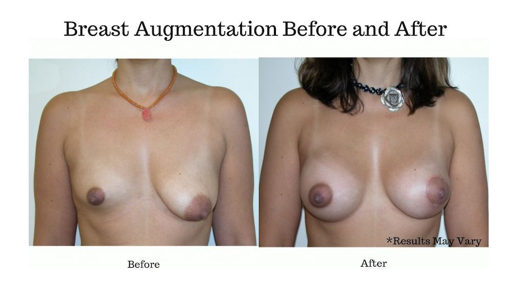 Before and after image showing the results of a woman's breast augmentation performed by Dr. Boyd in Rolling Hills Estates, CA.