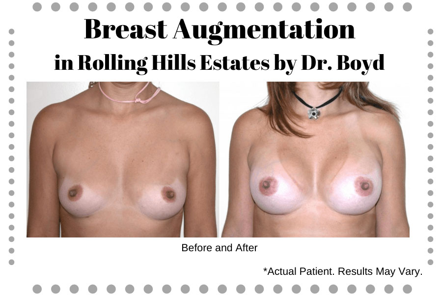 Woman before and after breast augmentation in Rolling Hills Estates, CA.
