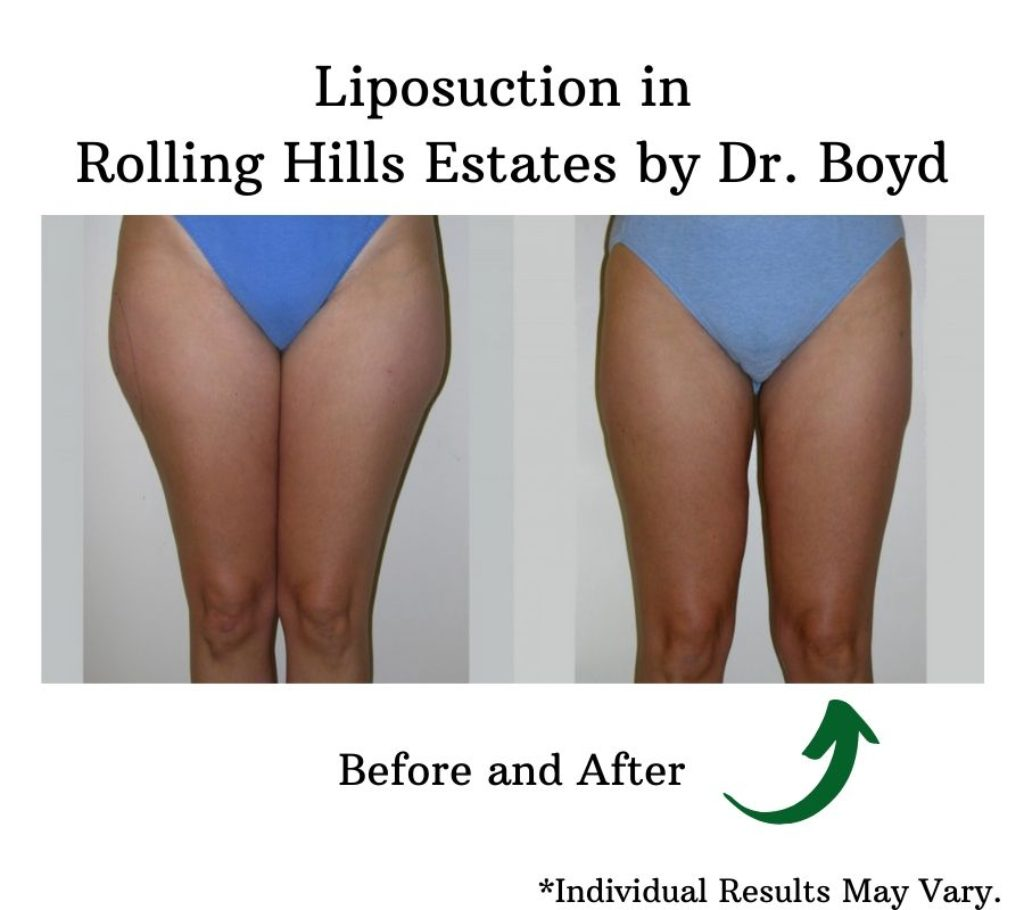 before and after image of liposuction on woman's legs