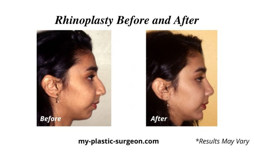 A woman before and after her rhinoplasty surgery with board certified plastic surgeon Brian Boyd MD inc.