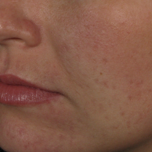 Skin Care 01 After Photo