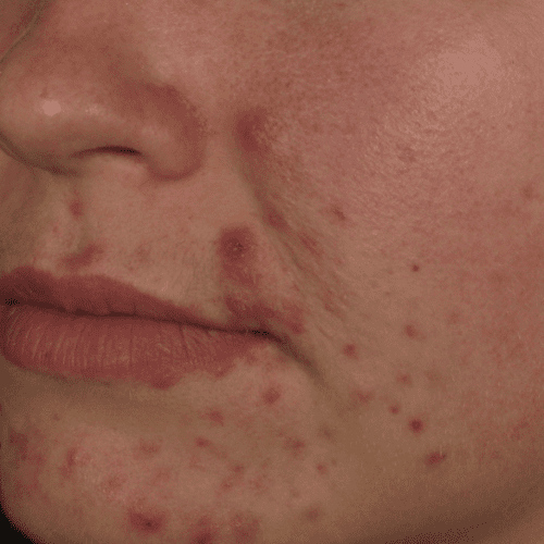 Skin Care 01 Before Photo