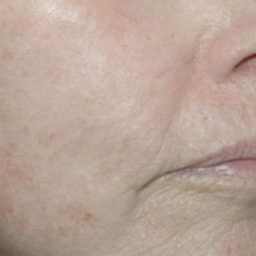 Skin Care 02 After Photo