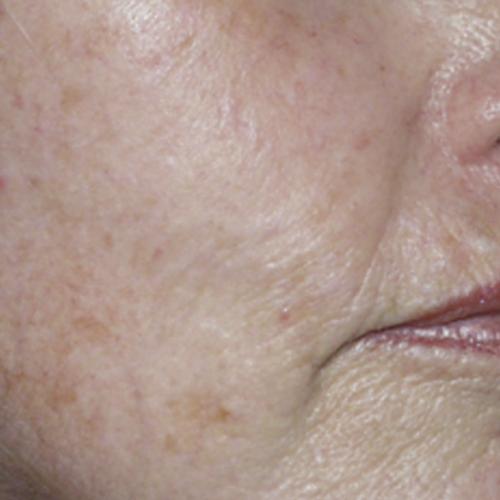 Skin Care 02 Before Photo