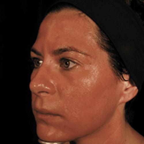 Skin Care 06 Before Photo