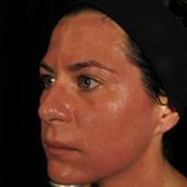 Skin Care 06