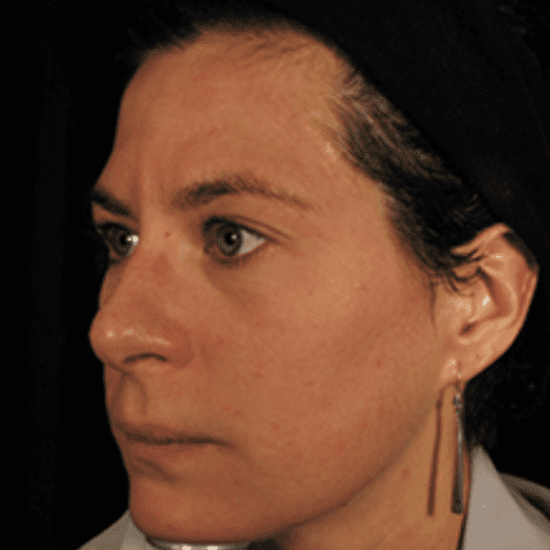 Skin Care 06 After Photo