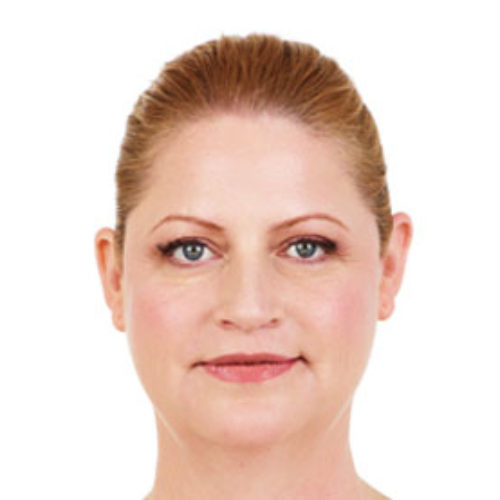 Injectable Fillers 09 After Photo