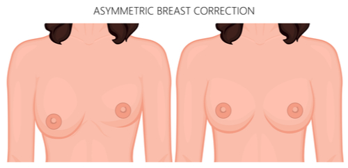 asymmetrical breast correction-img-blog