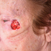 Mohs Surgery 10